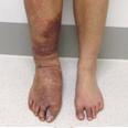 Klippel-Trenaunay Syndrome (KTS)